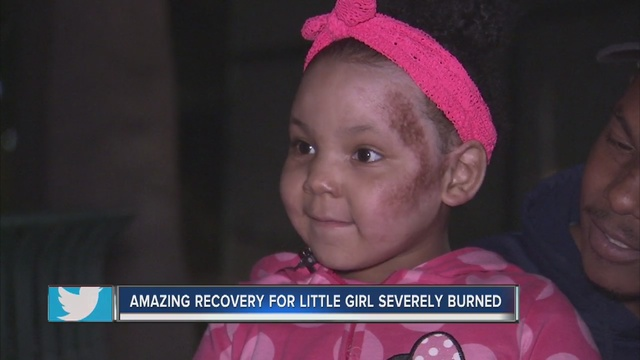 5-year-old girl recovering after severe burns