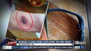 CONSUMER ALERT: Fitbit explodes on woman's wrist