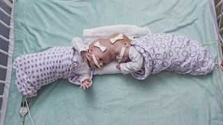 10-month-old twins joined at the head separated