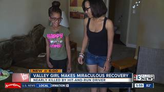 Trick-or-treater hit by car 4 years ago healing