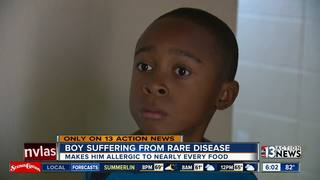 Las Vegas boy is allergic to nearly all foods