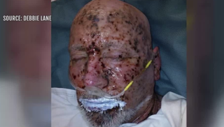 Man recovering after chemicals thrown into face