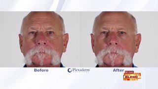 Revolutionary Cream To Get Rid Of Wrinkles