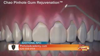 Chao Pinhole Gum Rejuvenation