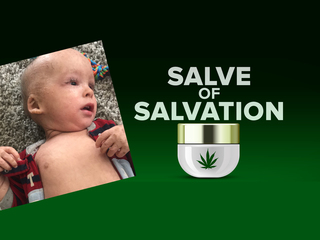 Cannabis cream helps baby with rare skin disease