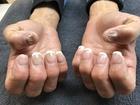 Nail salons cut costs, put customers at risk