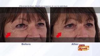 Look Younger In Minutes!