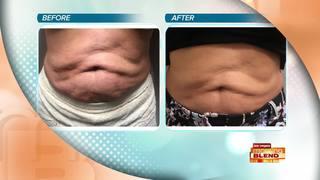 Lose Stubborn Fat With Vanquish