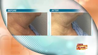 Breakthrough Skin Tightening Technology
